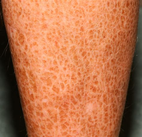 Ichthyosis Vulgaris - Causes, Symptoms, Complications