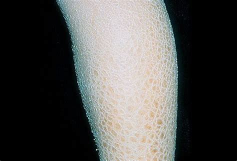 X-Linked Ichthyosis Picture Image on MedicineNet