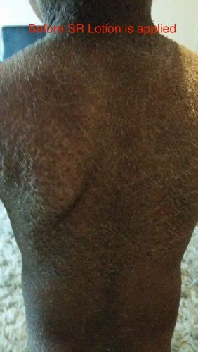 Excellent Ichthyosis Treatment, Outstanding Results in 2