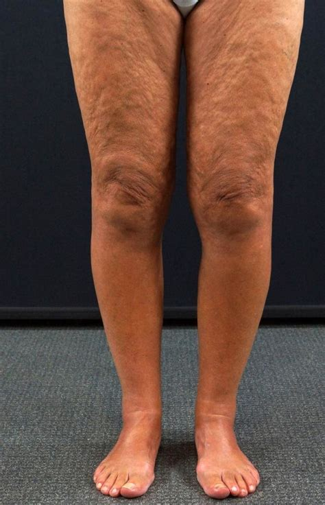 Eosinophilic fasciitis in a 64-year-old woman