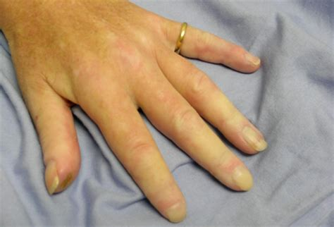 Limited cutaneous systemic sclerosis - Symptoms, diagnosis